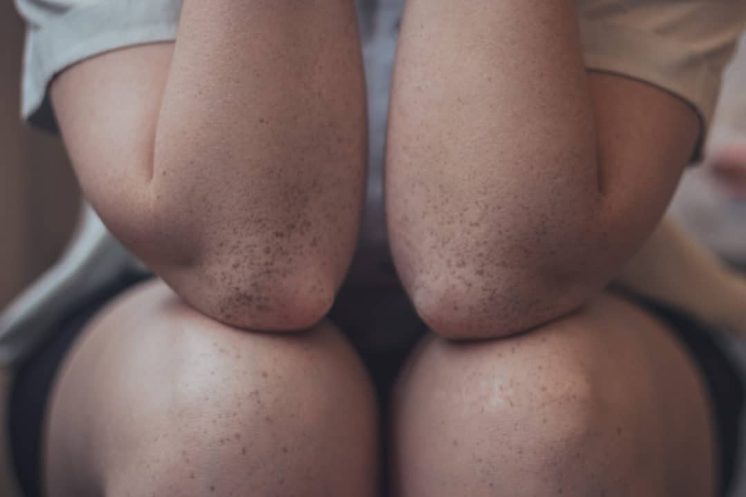 Douleur au genou - Gonalgie